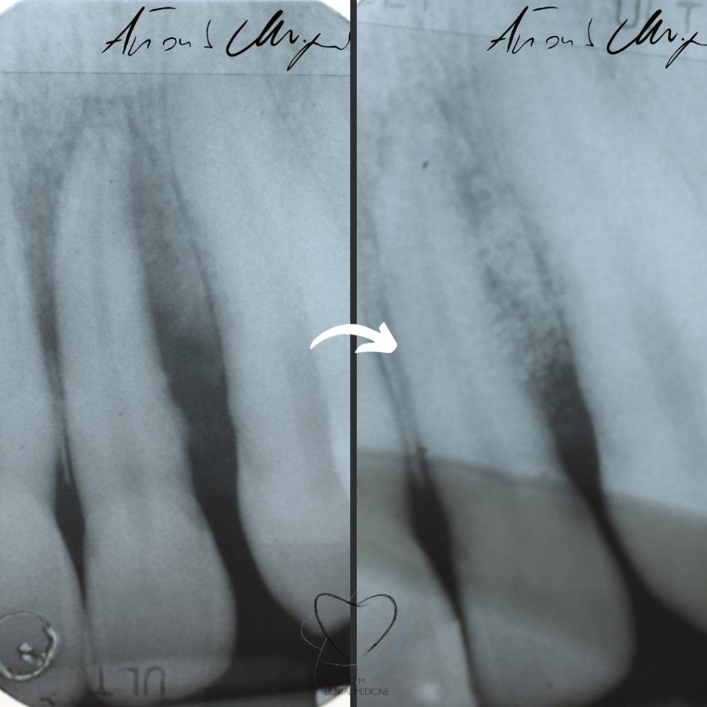 Tratamiento-periodoncia-dentista-caso-2