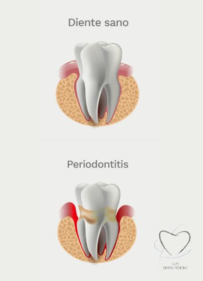 Tratamiento-periodoncia