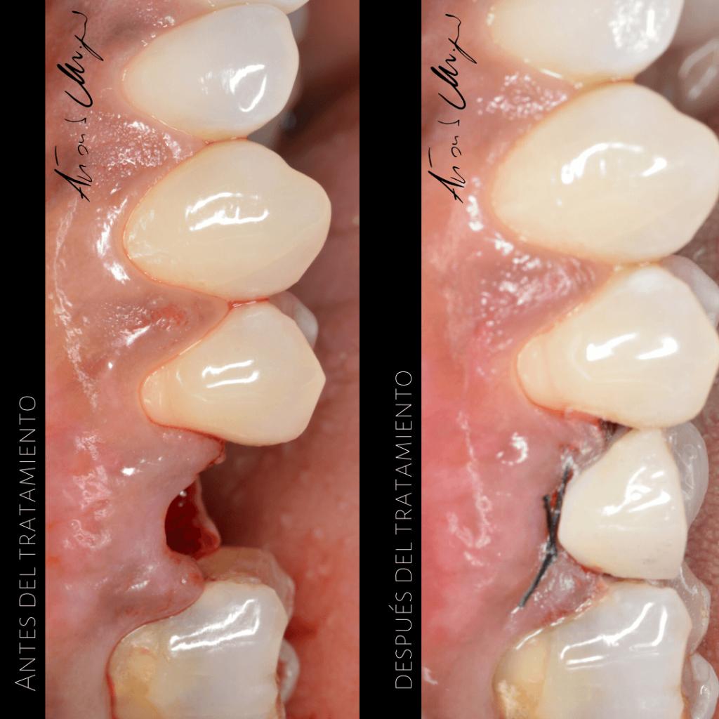 Tratamiento-implante-dental-dentista-caso