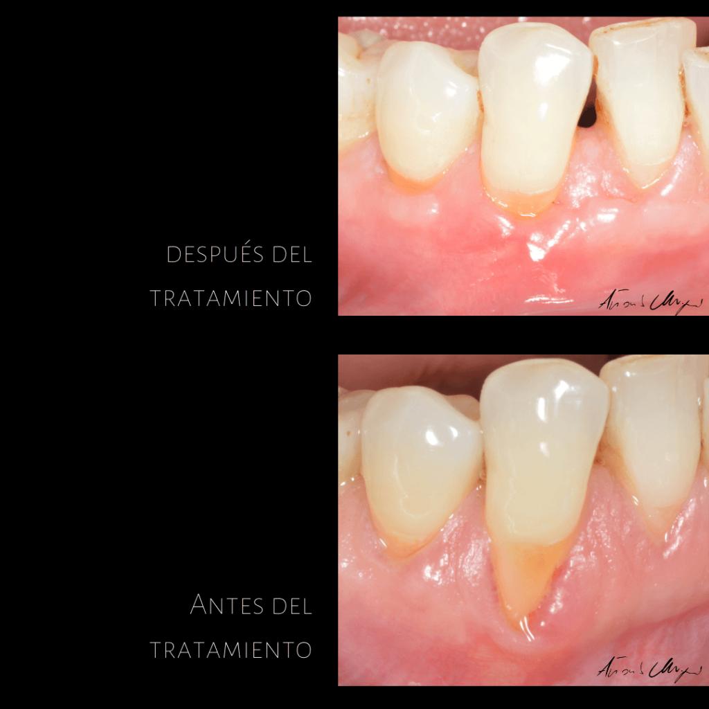 Tratamiento-periodoncia-dentista-caso