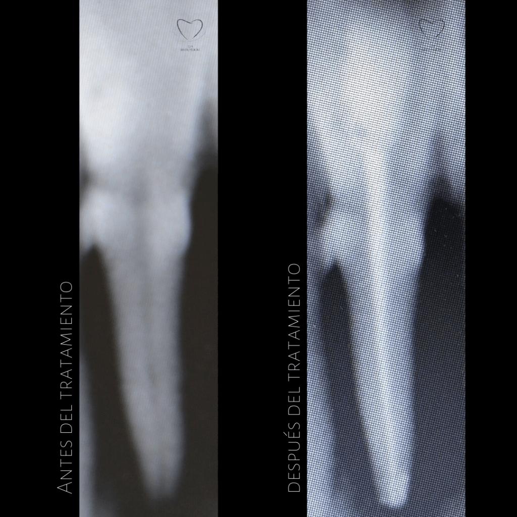 Tratamiento-endodoncia-dentista-caso