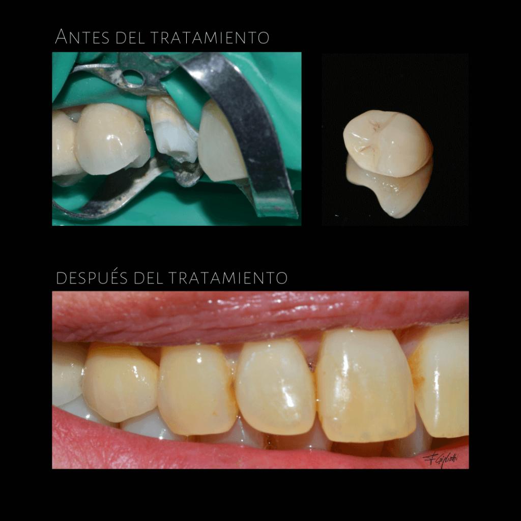 Tratamiento-protesis-dental-dentista-caso