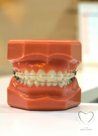 Tratamiento-Ortodoncia